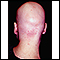 Alopecia totalis - back view of the head