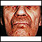 Image for Amyloidosis on the face
