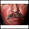 Image for Systemic lupus erythematosus rash on the face