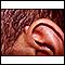 Queloide sobre el oído