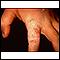 Dermatofitosis o tiña de la mano en el dedo