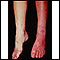 Síndrome de Sturge-Weber; piernas