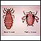 Image for Head louse and pubic louse