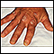 Image for Psoriasis on the knuckles