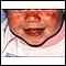 Lupus discoide en el rostro