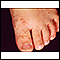 Image for Hand, foot, and mouth disease on the foot