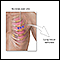 Image for Incision for lung biopsy
