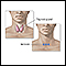 Image for Incision for thyroid gland surgery