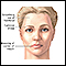 Image for Facial drooping
