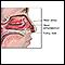 Image for Nasal polyps