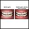 Image for Swollen gums
