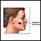 Image for Malignant melanoma