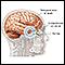 Image for Brain hernia