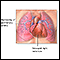 Image for Primary pulmonary hypertension