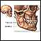 Image for Mandibular fracture