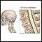 Image for Cervical spondylosis