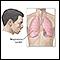 Image for Symptoms