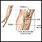 Image for Ulnar nerve damage